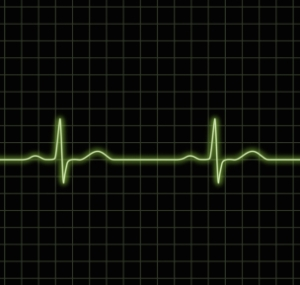 EKG Image