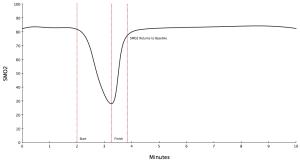 Ideal Curve